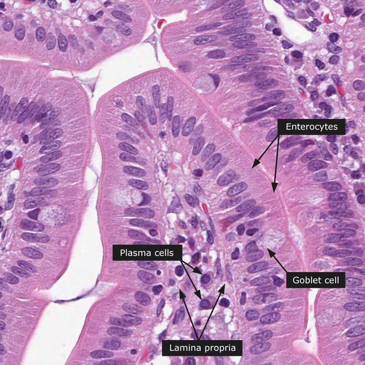 Dictionary - Normal: Duodenum - The Human Protein Atlas