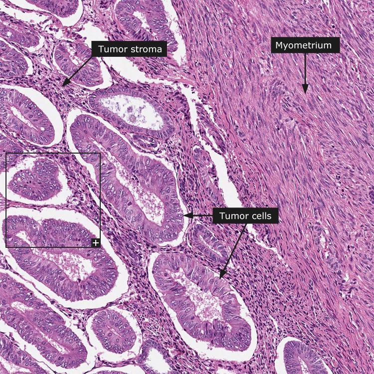 endometrial cancer cells